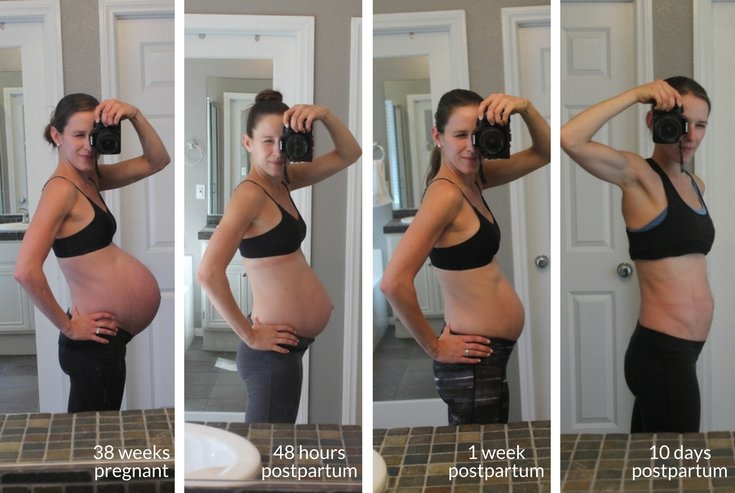 My journey with diastasis recti - before and after using a postpartum wrap and proper ab exercises