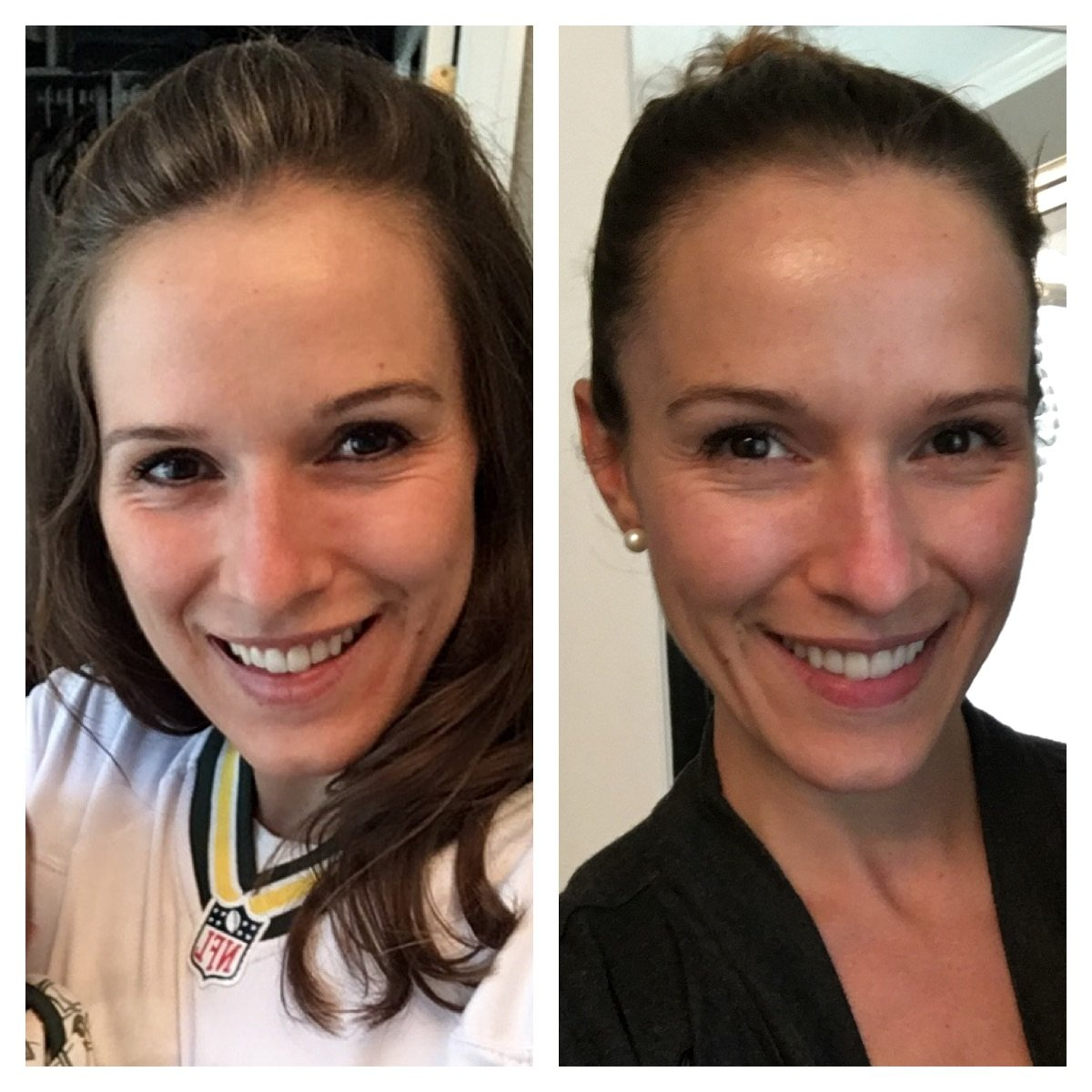 My experience taking collagen - skin before and after