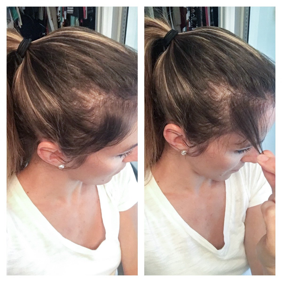 Postpartum hair loss and taking collagen supplements